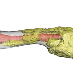 Bone Cancer Diagnosed in Dinosaur