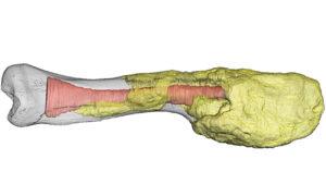 Dinosaur bone with cancer